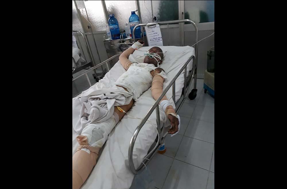 Anh Dũng hiện đang điều trị tại phòng số 3, lầu 4, Khoa Bỏng, Bệnh viện Chợ Rẫy TP.HCM với hơn 50% cơ thể bị bỏng và bội nhiễm hơi xăng mô phổi, suy hô hấp nặng ẢNH: BẢO VĂN